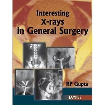 Interessante Röntgenaufnahmen In allgemeiner Chirurgie