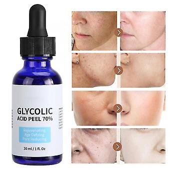 Glycolic Acid Peel Repair Solution - Shrink Pores Brighten Skin, Improve Acne