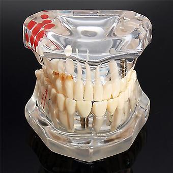 Implantaat tandheelkundige ziekte tanden model met restauratie brug, tand tandarts