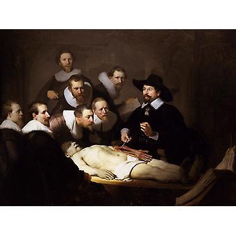 The Anatomy Lesson of Dr. Nicolaes, Rembrandt van Rijn, 50x40cm