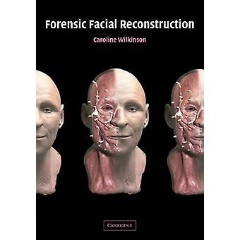 Forensic Facial Reconstruction by Caroline Wilkinson