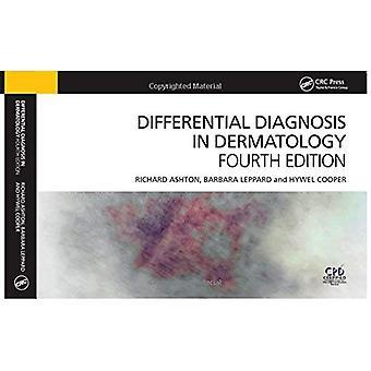 Differensialdiagnose i Dermatologi, 4th Edition