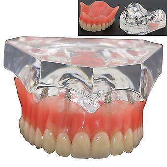 1pcs Dentaire Upper Overdenture Superior 4 Implants Demo Model Teeth Modèle