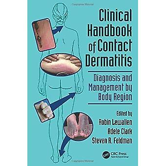 Klinisk håndbog i kontakt Dermatitis: diagnose og forvaltning ved krop Region