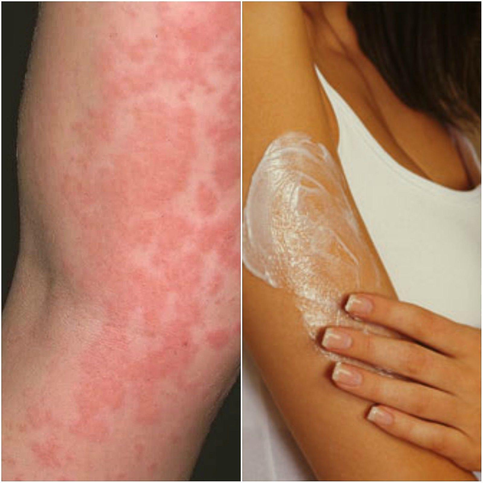 PrrEze Pityriasis rosea relief.8 ounce All natural. No steroids. No chemicals.