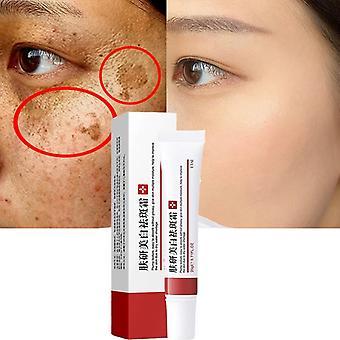 Effektive Aufhellung Freckle Creme entfernen Melasma Akne Fleck Pigment Melanin Dunkle Flecken Pigmentierung feuchtigkeitsbefeuchtende Gel Hautpflege