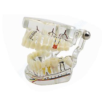 New Arrival Dental Teeth Transparent Pathological Implant Nerve Model..