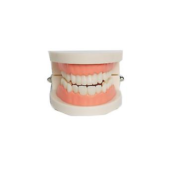 Model zębów Zęby Implant Przywrócenie Most Nauczanie Study Medical Science