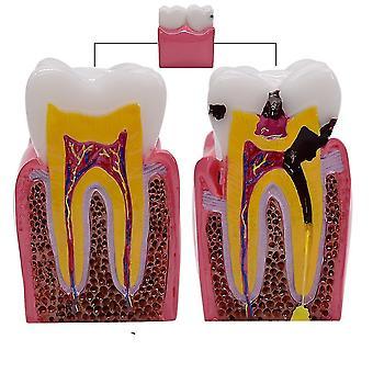 1pc 6 fois dentaire Caries modèles de comparaison- Modèle de carie dentaire pour l'étude dentaire