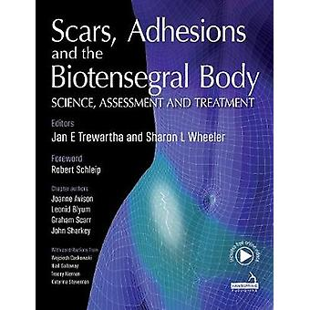 Scars - Adhesions and the Biotensegral Body by Jan Trewartha - 978191