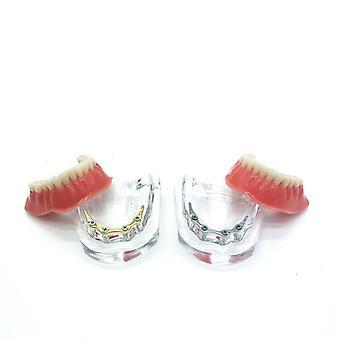 Tenner implantat modell med Golden Bar protese tenner mandibular undervisning modell