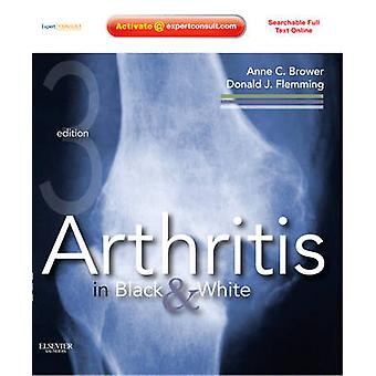 Arthritis in Black and White by Anne C Brower